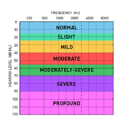 audiogram-chart-color-coded